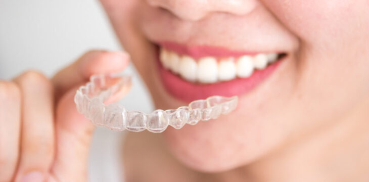 Should You Use Tooth Whiteners While Wearing Braces?